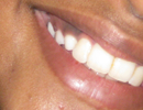 dental implants & dentures