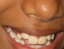 braces and cosmetic dentistry